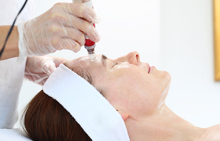 Mesotherapy For Face What Is It