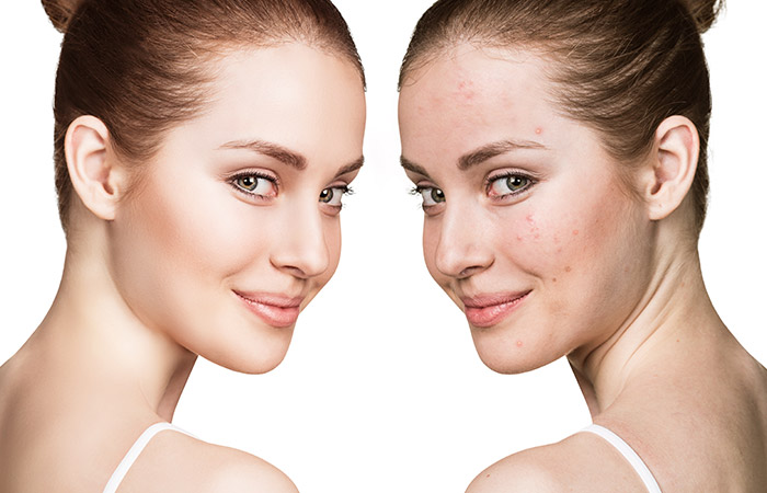 Skin Purging – Everything You Need to Know About It