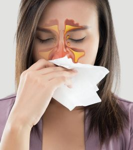 Sinusitis Symptoms and Treatment at Home in Hindi