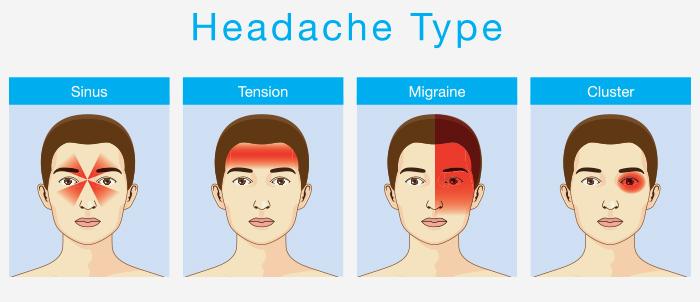 Types of Headache in Hindi