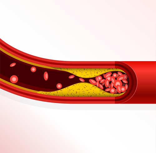 What Is Cholesterol And Why is important