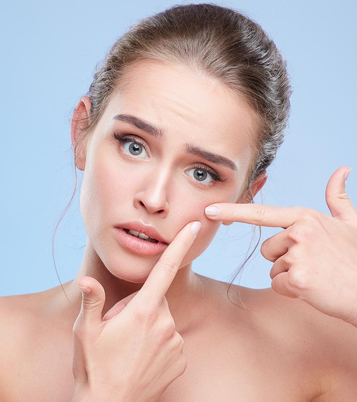 6 Ways You Should Not Treat A Pimple And 2 Ways You Should