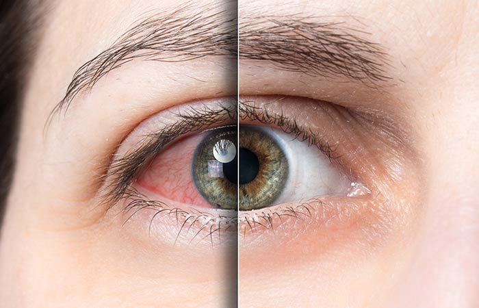Benefits of Mausambi for Eyes
