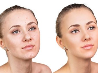 Benzoyl Peroxide Vs. Salicylic Acid Which Is Better For Acne Treatment