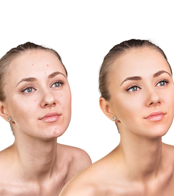 Benzoyl Peroxide Vs Salicylic Acid Which Is Better For Acne