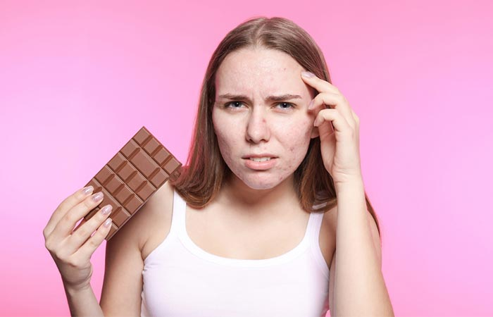 Don't Indulge in Foods That Trigger Your Acne