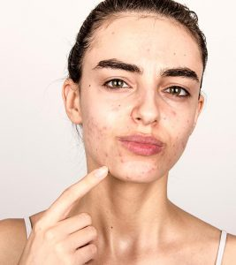 Hormonal Acne: How To Treat It Effectively