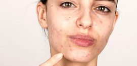 Hormonal Acne How To Treat It Effectively
