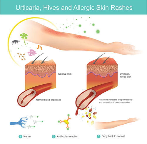 How Does Histamine Trigger An Allergic Reaction