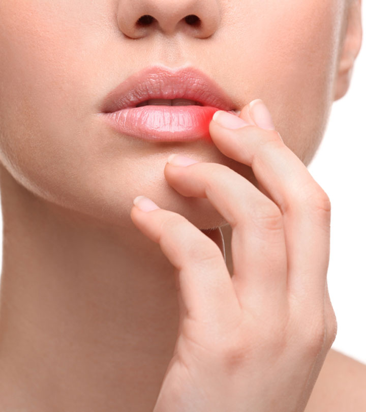 How To Get Rid Of Cold Sores in Hindi