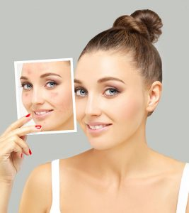Pimple Marks Removal Home Remedies in Hindi