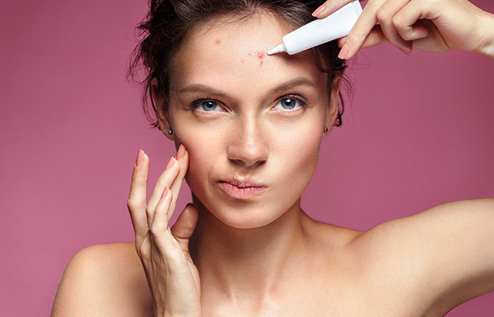 Relieve Pimples