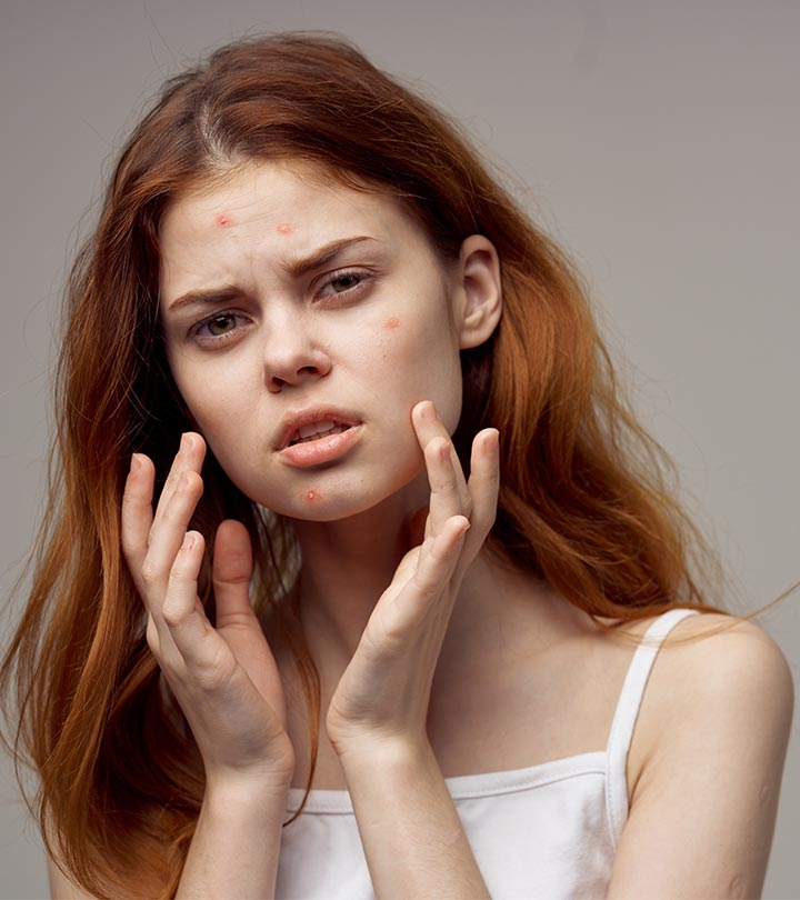 Spironolactone For Acne – How It Works, Dosage, And Side Effects