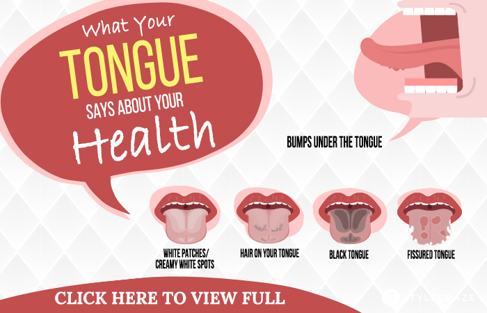 Types of Tongue tb