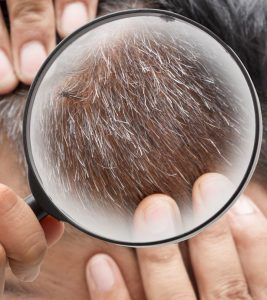 White Hair Safed Baal Treatment at Home in Hindi