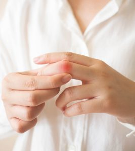 12 Trigger Finger Exercises To Relieve Finger Pain