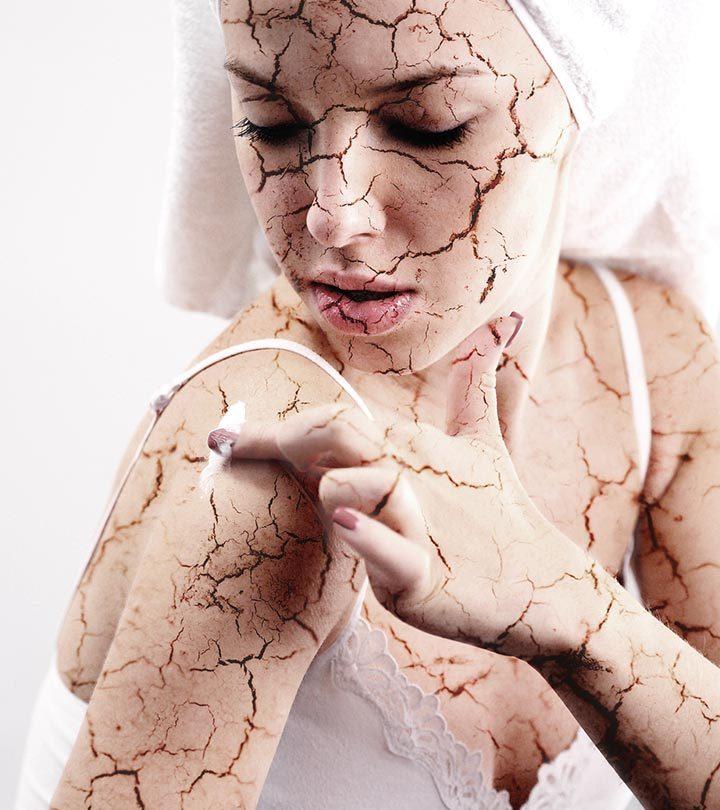 Dehydrated-Skin