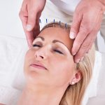 Facial Acupuncture What Is It, Benefits, And Side Effects