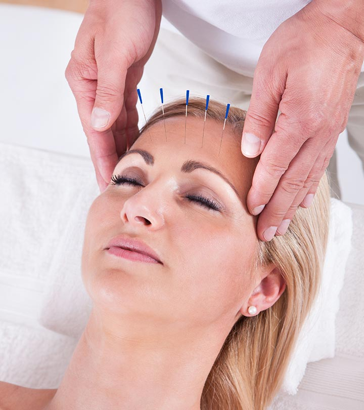 Facial Acupuncture: What Is It, Benefits, And Side Effects