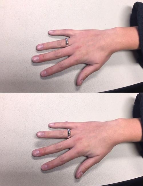 Flat-Hand Finger Lifts