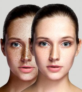 Home Remedies For Skin Pigmentation In Hindi