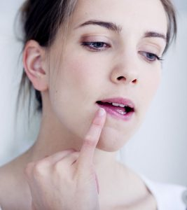 Home Remedies for Cracked Lips in Hindi