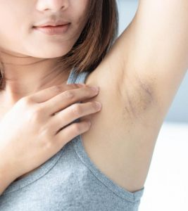 Home Remedies for Dark Underarms in Hindi