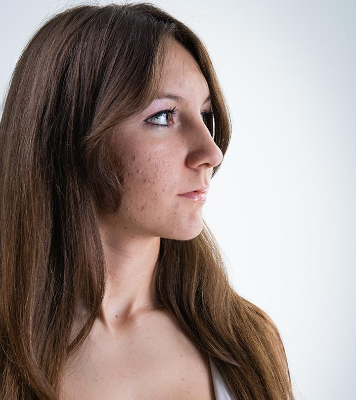 How Does Doxycycline Work For Acne