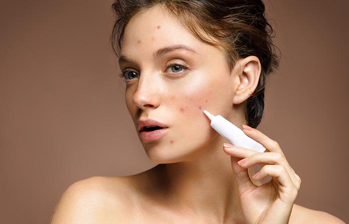 Spot Treatment Creams