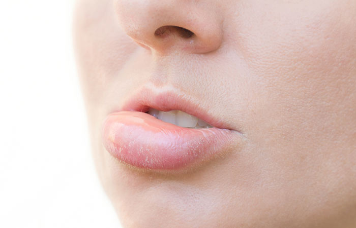 What-Are-The-Side-Effects-And-Risks-Involved-In-Lip-Augmentation
