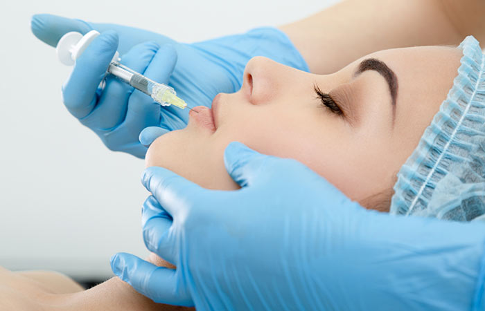 What-To-Expect-During-the-Lip-Augmentation-Process