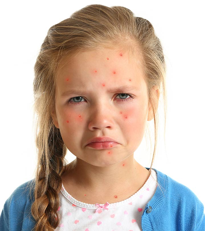 Chicken Pox Treatment at Home in Hindi