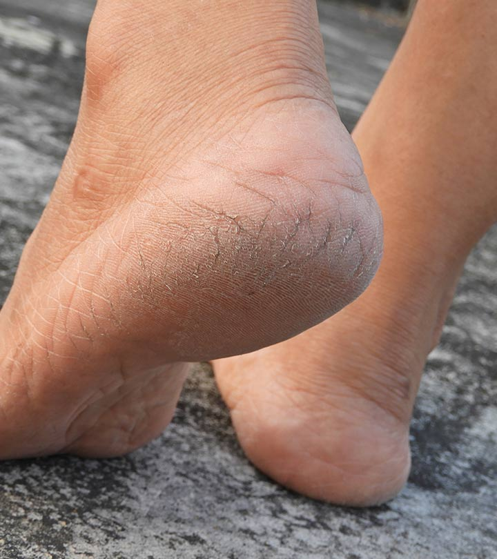 Cracked Heel Remedies in Hindi