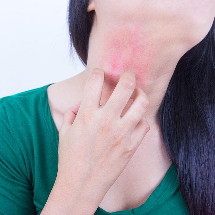 Home Remedies for Itching (Khujli) in Hindi
