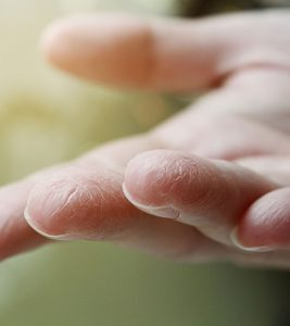 Home Remedies for Painful And Cracked Fingertips In Hindi