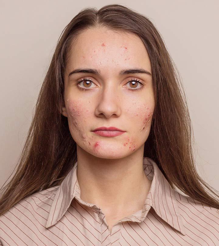 Homemade Face Packs For Acne Prone Skin