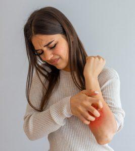 Itchy Skin Khujli Remedies
