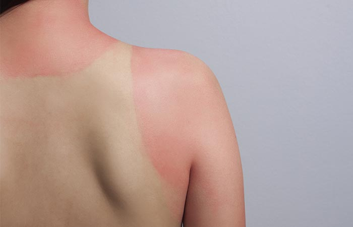 Healing-sunburns-and-aging skin