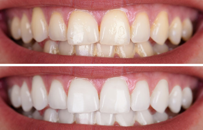 Peroxide Whitening Teeth