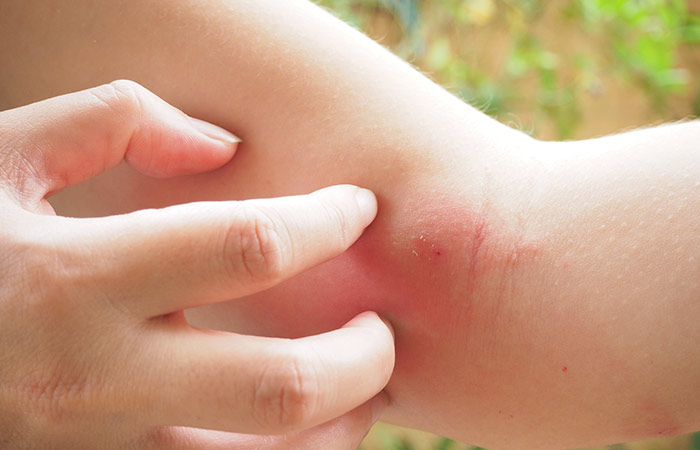 Relief from wound healing and insect bites