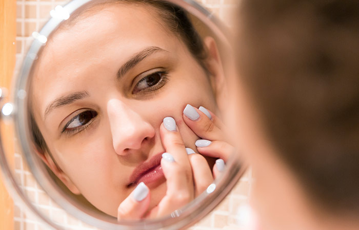 Treatment of acne and black spots