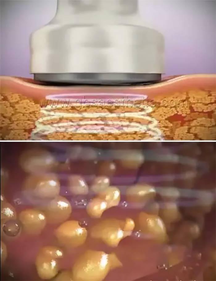 What Is An Ultrasonic Cavitation Machine