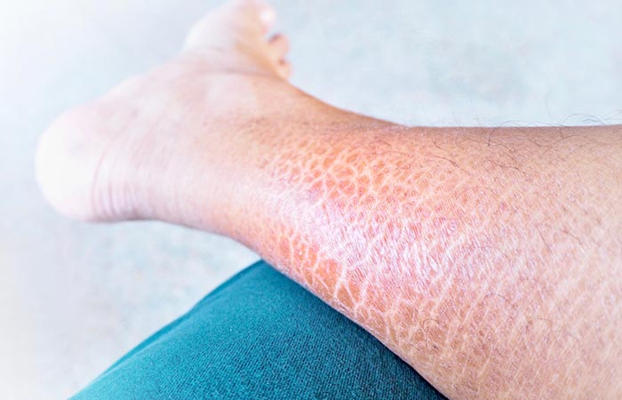 Ichthyosis Vulgaris  U2013 Causes  Symptoms  And Treatment