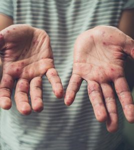 Home Remedies For Hand, Foot, And Mouth Disease