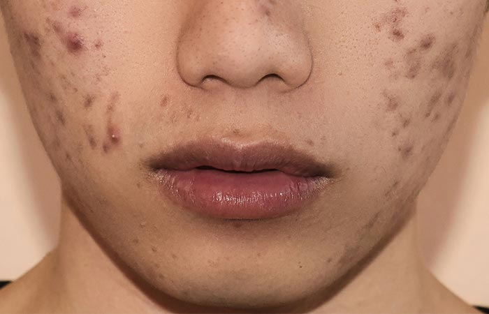 How do pimples occur