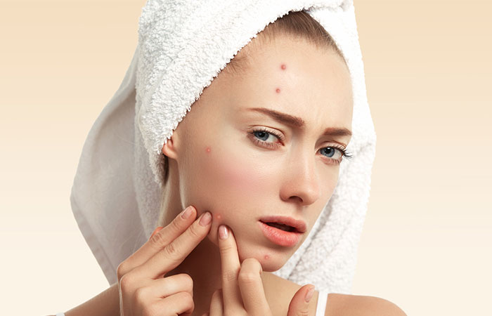 Image result for acne face pic,nari