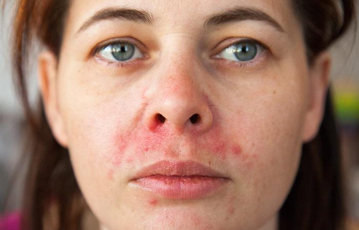 Heals all varieties of dermatitis