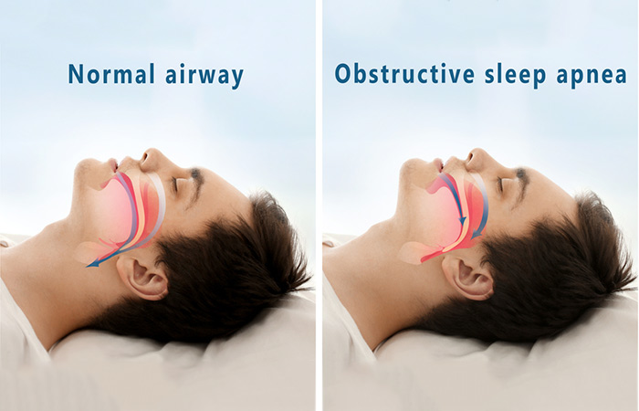 Shutterstock </p> </div> <p><strong>  Shutterstock </p> </div> <p><strong>  Sleep apnea </strong> is a sleep disorder in which the sleep of a person is interrupted due to obstructive breathing . There are two main types of sleep apnea: <strong> obstructive sleep apnea </strong> and <strong> central sleep apnea </strong>. The first occurs when the human respiratory tract is blocked by soft tissue behind the throat, and the latter occurs when a person's brain forgets to instruct the body to breathe due to a malfunctioning respiratory control center. Both types of sleep apnea lead to snoring, insomnia, fatigue, wakefulness with a headache or sore throat, wheezing or breathlessness, mood swings and anxiety. The anti-snoring pillow can solve some of these problems and help you get a more relaxed sleep. Check out its advantages: </p> <h2>  Benefits of snoring pillows and how they work </h2> <ol> <li>  Pillows against snoring help keep your breathing paths open when you are sleeping. They improve head and neck alignment, thus reducing the throat vibrations that are produced due to sleeping breathing. </li> </ol> <ol start=