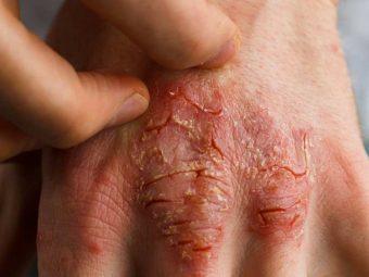 सोरायसिस (छाल रोग) के कारण, लक्षण और घरेलू उपाय - Psoriasis Symptoms and Home Remedies in Hindi