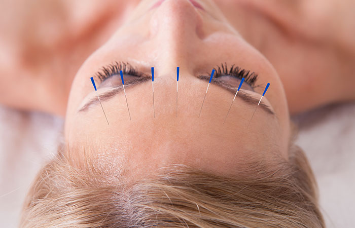 5. Get Instant Relief With Acupuncture